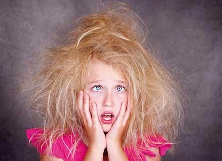راه حل برای لخت شدن موهای وز